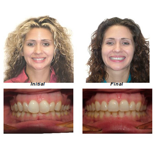 Little Known Facts About Adult Braces Before And After.