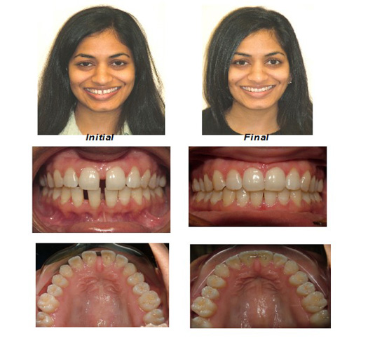 Invisalign Spacing-Treated with Invisalign