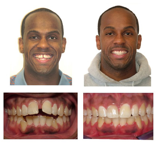 Invisalign Upper Protruision-Spacing