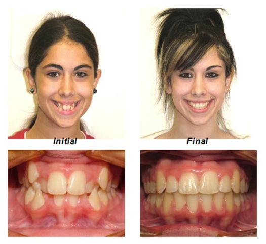 Smile Gallery Millburn Nj Millburn Orthodontics